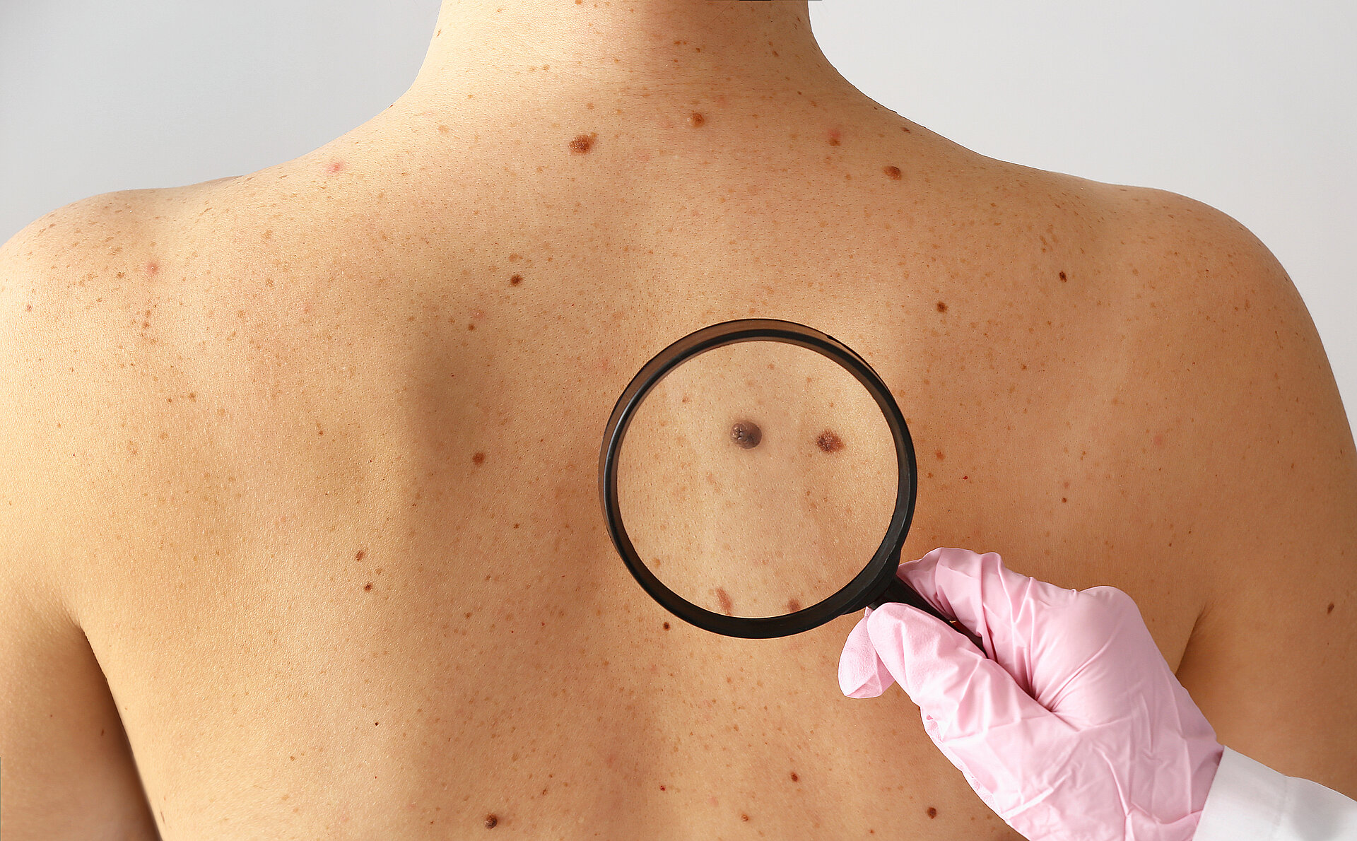 Melanoma is the most rapidly increasing cancer in Sweden and 10-15% of all cases are hereditary